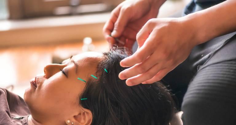 Aromatherapy - acupenture helps