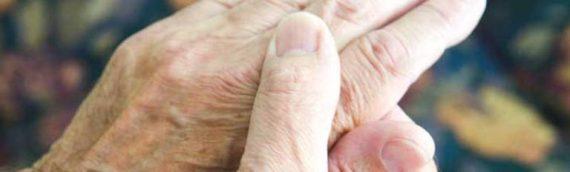 Rheumatoid Anthritis