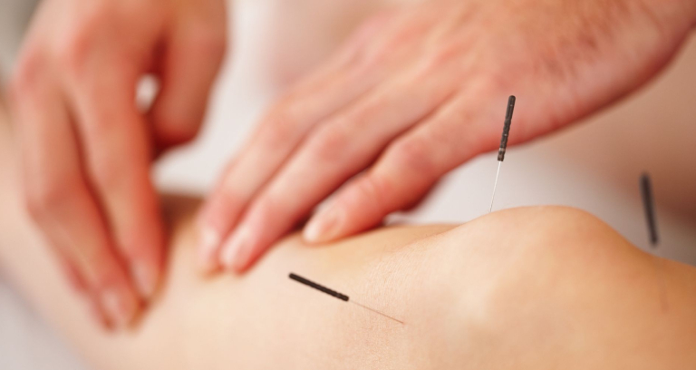 Dry Needling Acupunture For Leg Massage.
