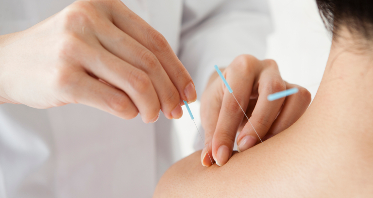 A Therapist Giving Dry Needling Treatment For A Woman In A Therapy Room.