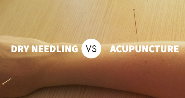 An Image Representing Acupuncture vs. Dry needling